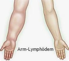 Forschung: Anonyme Umfrage zu Arm-Lymphödem – bitte mitmachen!